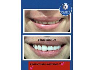 Blanquear dientes-595683