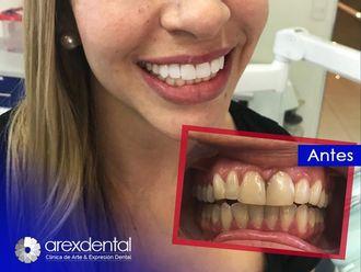 Estética dental-623067