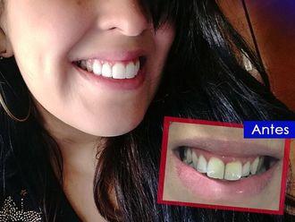 Endodoncia-623070
