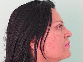 Lifting facial y Rinoplastia