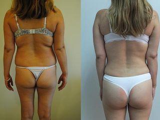 Antes y despues de Aumento Glúteo con tejido adiposo propio