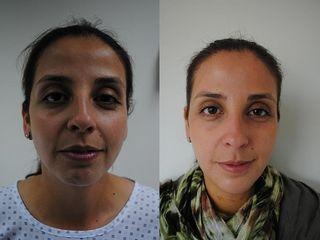 Antes y despues de implantes de menton