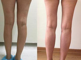 Antes y despues de implantes de pantorrillas