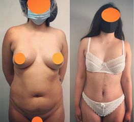 Abdominoplastia - Dr. Diego Polanco