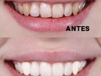 Blanquear dientes-575261
