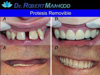 Prótesis dentales - 566857