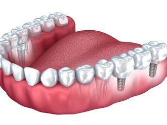 Implantes dentales-640689
