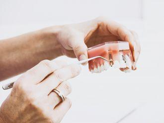 Implantes dentales-640692