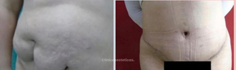 Abdominoplastia y Liposuccion