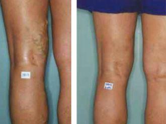 Tratamiento de varices - 501749