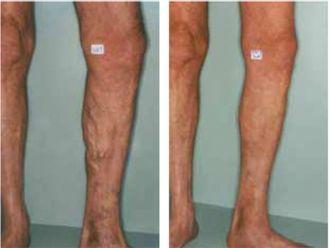 Tratamiento de varices - 501750