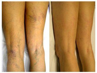 Tratamiento de varices - 501751
