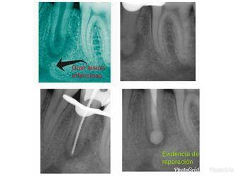 Endodoncia - 632415