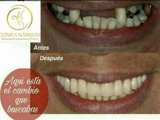 Prótesis dentales - 632778