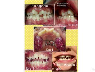 Ortodoncia - 632781