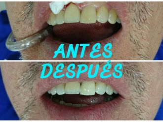 Blanquear dientes - 632927