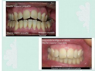 Ortodoncia - 632928