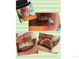 Endodoncia - 632929