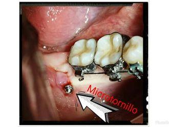 Ortodoncia - 632930