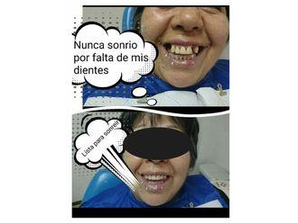 Prótesis dentales - 632932