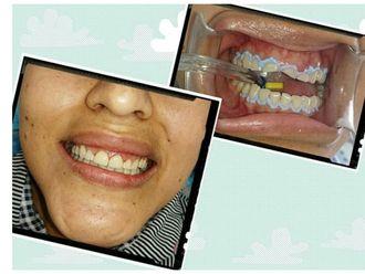 Blanquear dientes - 634476
