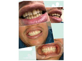 Blanquear dientes - 634477
