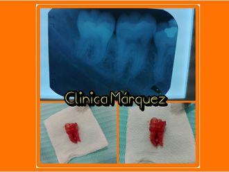 Extracción de dientes-635767