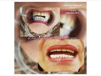 Blanquear dientes - 636595