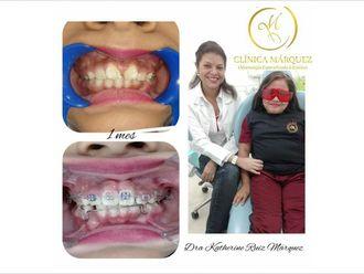 Ortodoncia - 636598