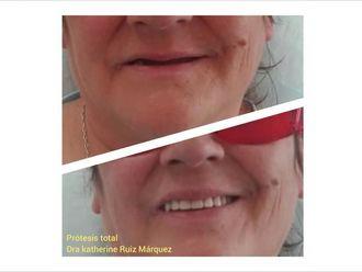 Prótesis dentales - 636599