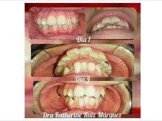 Ortodoncia-636600