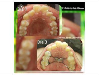 Ortodoncia-636601
