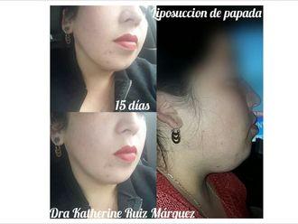 Liposucción - 638144