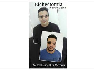 BICHECTOMIA.. Antes y después.
