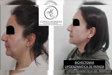 Bichectomia + Lipoenzimatica