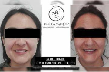 Perfilado de rostro. Bichectomia + Lipoenzimatica
