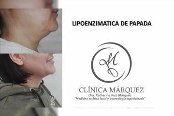 Elimina tu papada sin cirugía, Lipoenzimatica
