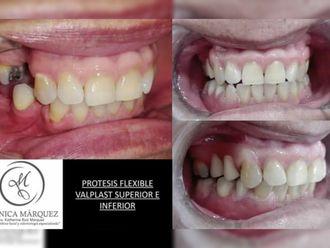 Prótesis dentales - 650258