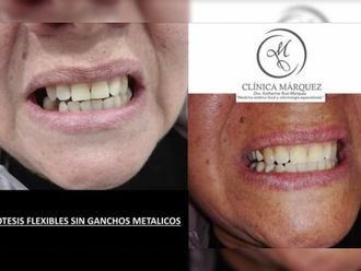 Prótesis dentales-650259