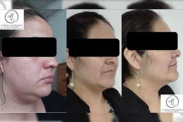 Afina tu rostro, Bichectomia + Lipoenzimatica