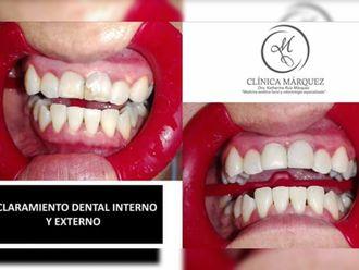 Blanquear dientes - 650261