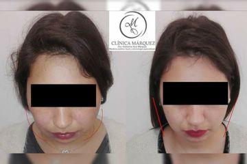 Bichectomia, antes y después