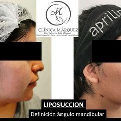 Liposucción - Dra. Katherine Ruiz