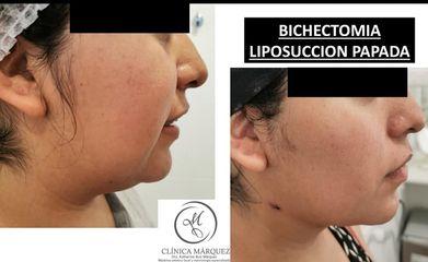 Bichectomia + Lipo papada - Dra. Katherine Ruiz