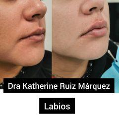 Dra. Katherine Ruiz - Aumento de labios