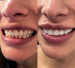 Dra. Katherine Ruiz - Carillas en resina sin desgaste dental