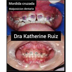 Dra. Katherine Ruiz - Tecnica 4*2 ortopedia maxilar