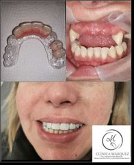 Implantes dentales - Dra. Katherine Ruiz