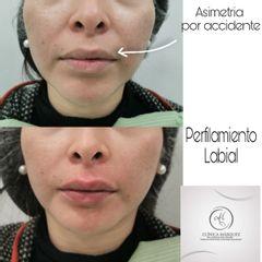 Perfilamiento de labios - antes y después