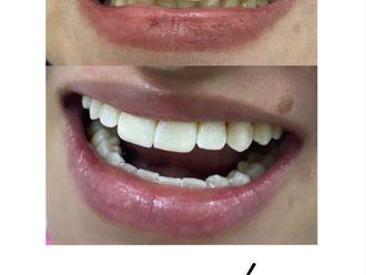 Blanquear dientes - 689720